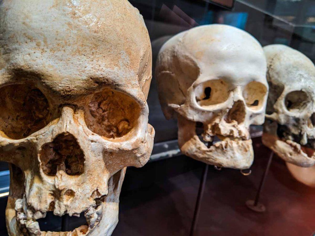 3 Inca skulls at the Machu Picchu museum